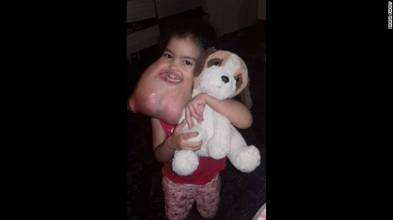 3-year-old Gets a Rare 5-Pound Tumor Removed